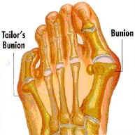 bunion1
